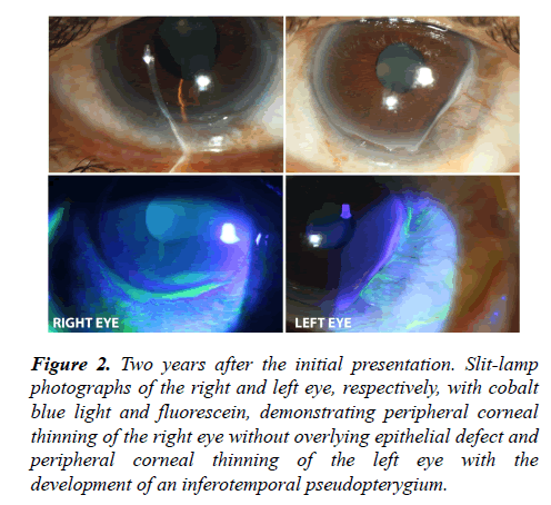 ophthalmic-eye-research-initial