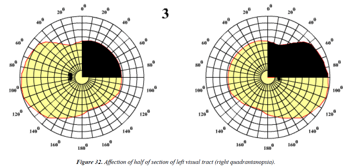 ophthalmic-eye-research-left-visual-tract