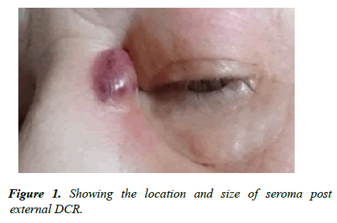 ophthalmic-eye-research-location