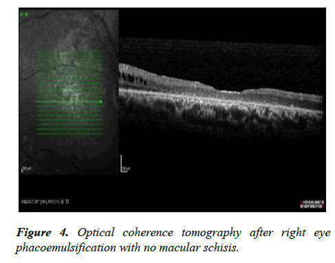 ophthalmic-eye-research-macular