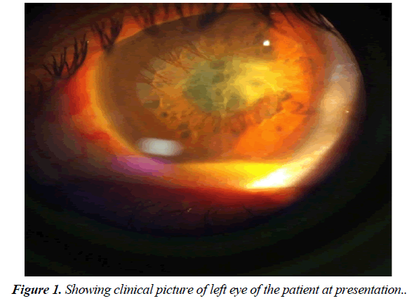 ophthalmic-eye-research-patient-presentation