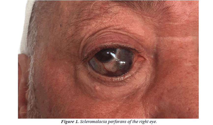 ophthalmic-eye-research-perforans