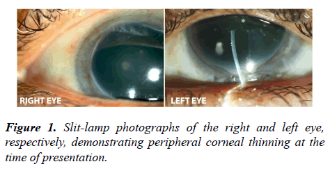 ophthalmic-eye-research-peripheral
