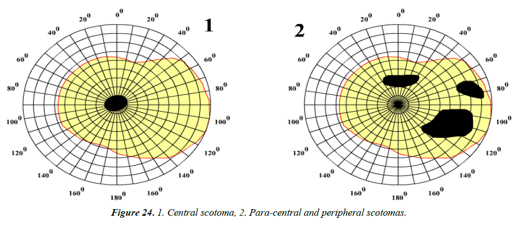 ophthalmic-eye-research-peripheral-scotomas