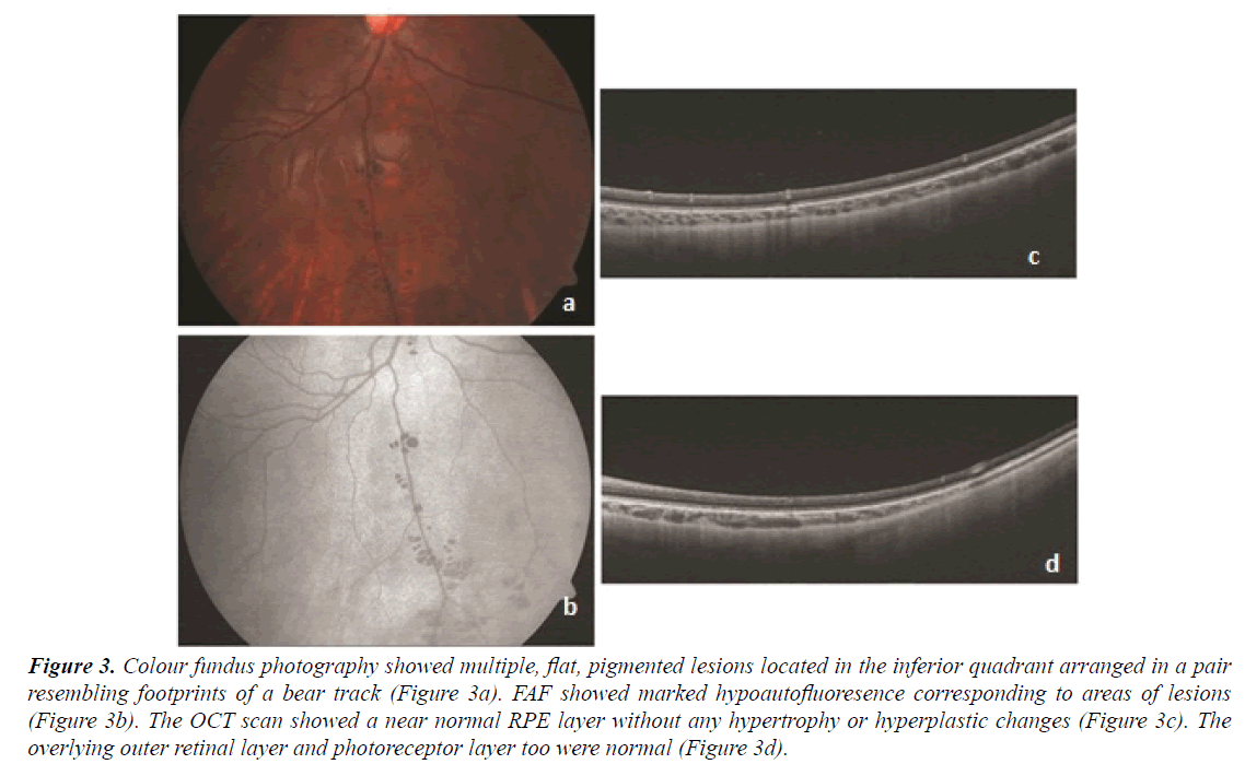 ophthalmic-eye-research-pigmented-lesions