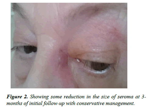 ophthalmic-eye-research-reduction