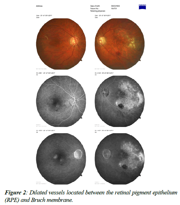 ophthalmic-eye-research-retinal-pigment