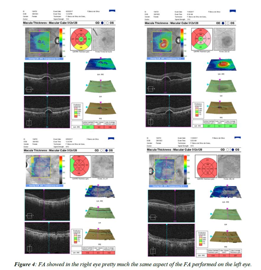 ophthalmic-eye-research-right-eye-pretty