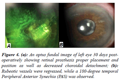 ophthalmic-eye-research-temporal