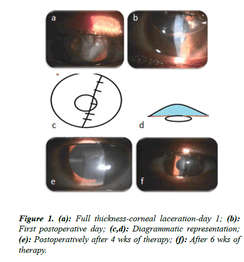 ophthalmic-eye-research-thickness