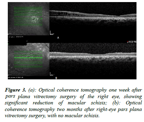 ophthalmic-eye-research-tomography