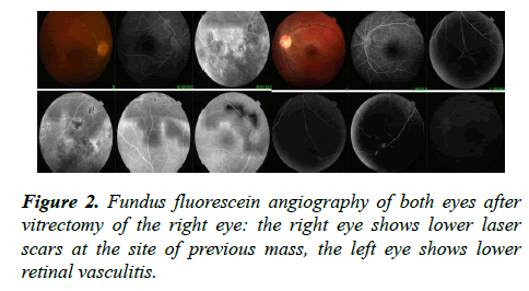 ophthalmic-eye-research-vitrectomy