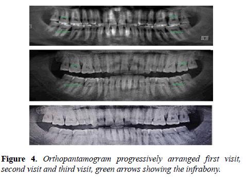 oral-medicine-and-toxicology-Orthopantamogram
