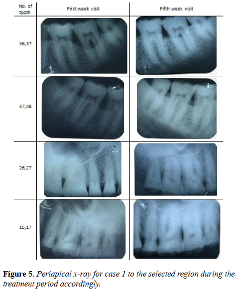 oral-medicine-and-toxicology-Periapical-x-ray