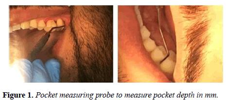 oral-medicine-and-toxicology-pocket-depth