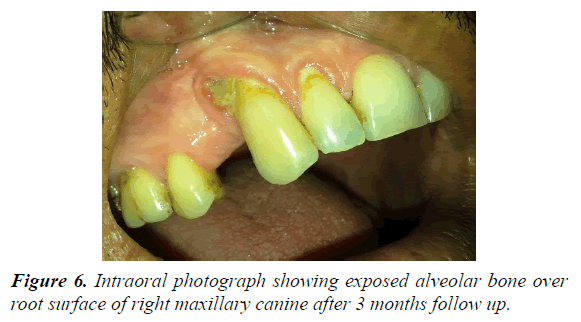 A rare presentation of herpes zoster induced osteonecrosis