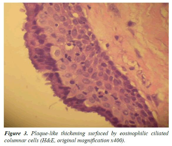 oral-medicine-toxicology-columnar-cells