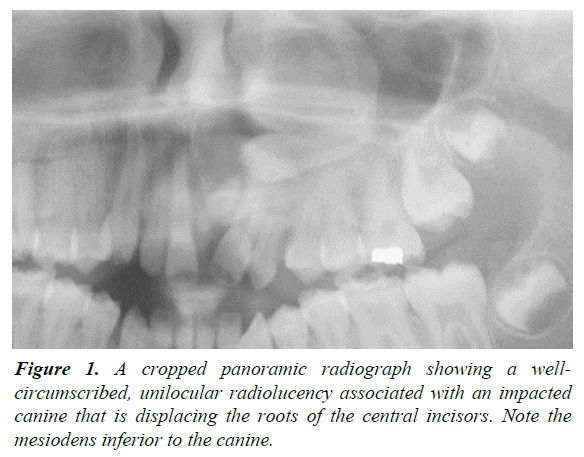 oral-medicine-toxicology-panoramic-radiograph