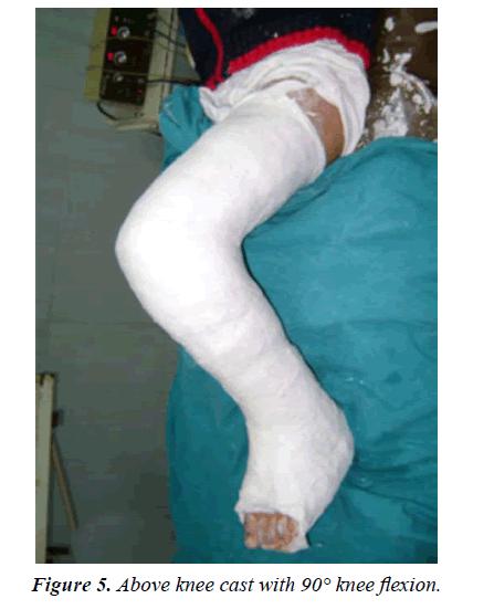 orthopedic-surgery-rehabilitation-Above-knee-cast