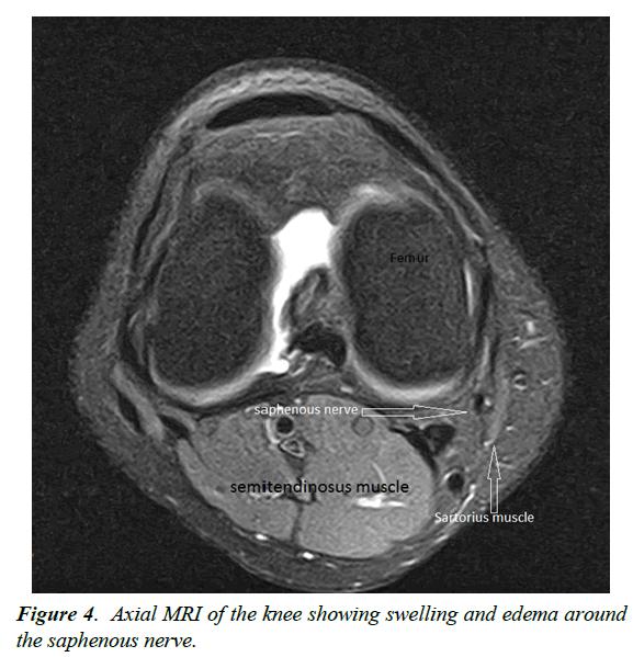 orthopedic-surgery-rehabilitation-Axial-MRI-knee-showing-swelling