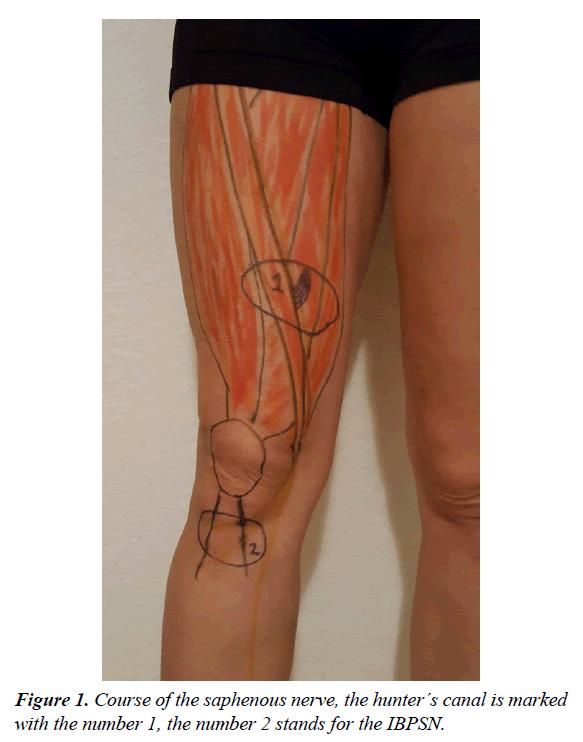 orthopedic-surgery-rehabilitation-Course-saphenous-nerve