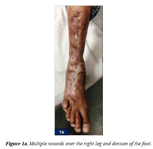 orthopedic-surgery-rehabilitation-Multiple-wounds-over-right-leg