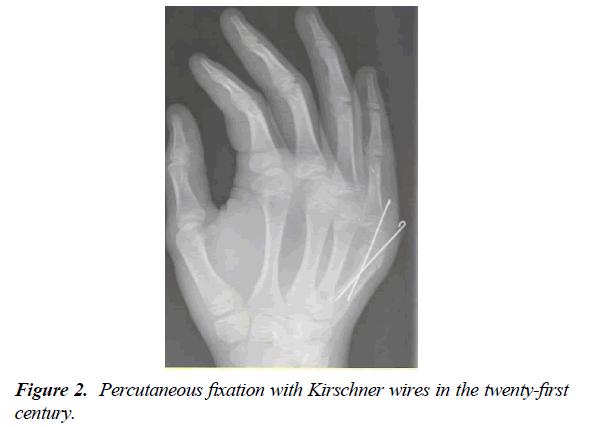 orthopedic-surgery-rehabilitation-Percutaneous-fixation-Kirschner