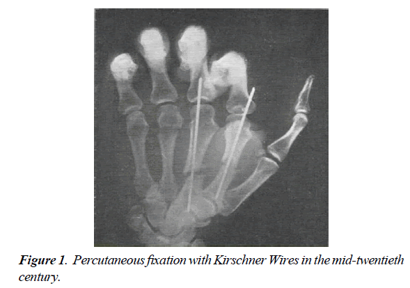 orthopedic-surgery-rehabilitation-Percutaneous-fixation-Kirschner-Wires