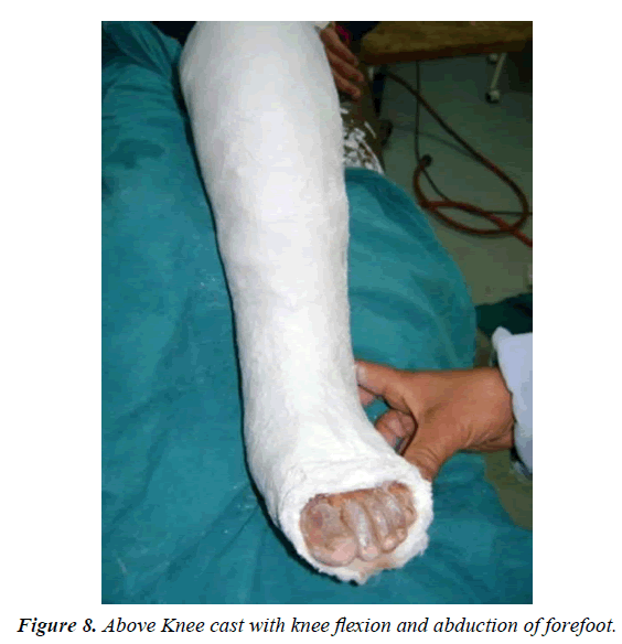 orthopedic-surgery-rehabilitation-abduction-forefoot