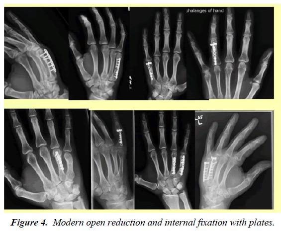 orthopedic-surgery-rehabilitation-internal-fixation-plates