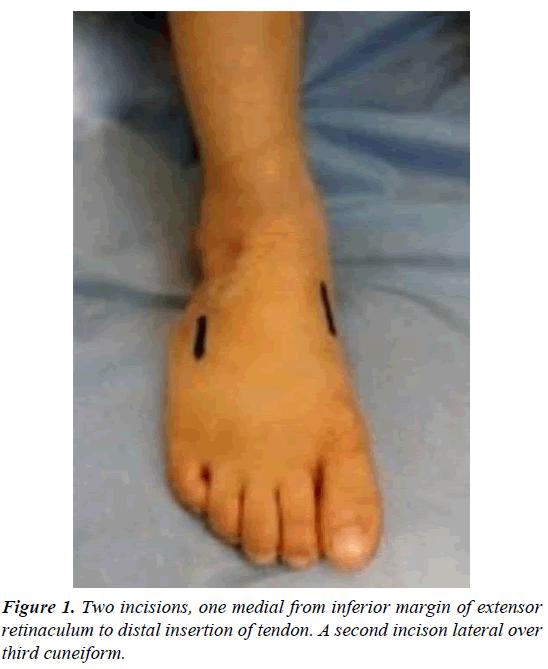 orthopedic-surgery-rehabilitation-medial-inferior-margin