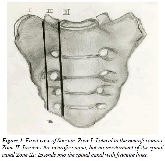 orthopedic-surgery-rehabilitation-neuroforamina