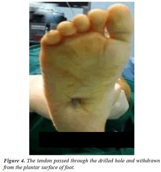 orthopedic-surgery-rehabilitation-plantar-surface-foot