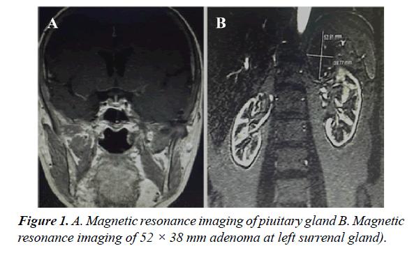 orthopedic-surgery-rehabilitation-resonance-imaging