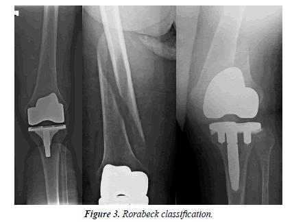 orthopedic-surgery-rehabilitation-segmentary-classification