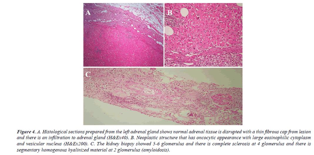 orthopedic-surgery-rehabilitation-segmentary-homogenous