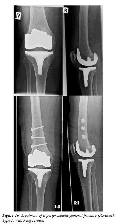 orthopedic-surgery-rehabilitation-segmentary-screws
