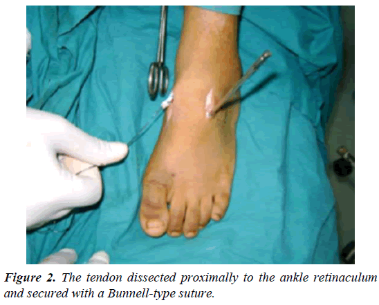 orthopedic-surgery-rehabilitation-tendon-dissected