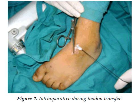orthopedic-surgery-rehabilitation-tendon-transfer