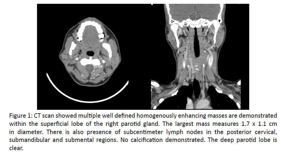 otolaryngology-CT-scan-showed