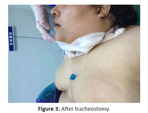 otolaryngology-online-journal-After-tracheostomy