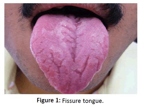 otolaryngology-online-journal-Fissure-tongue