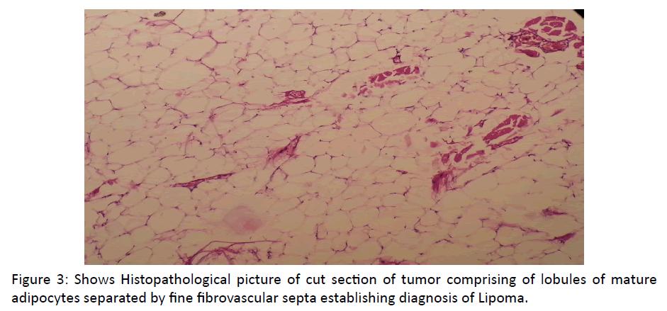 otolaryngology-online-journal-Histopathological