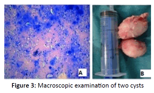 otolaryngology-online-journal-Macroscopic-examination