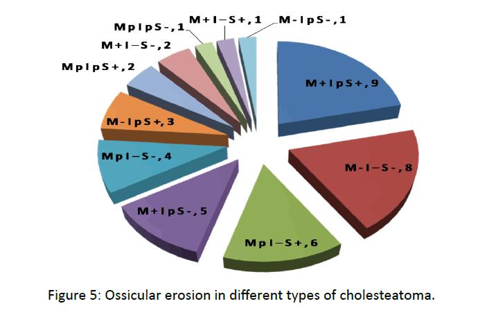 otolaryngology-online-journal-Ossicular-erosion