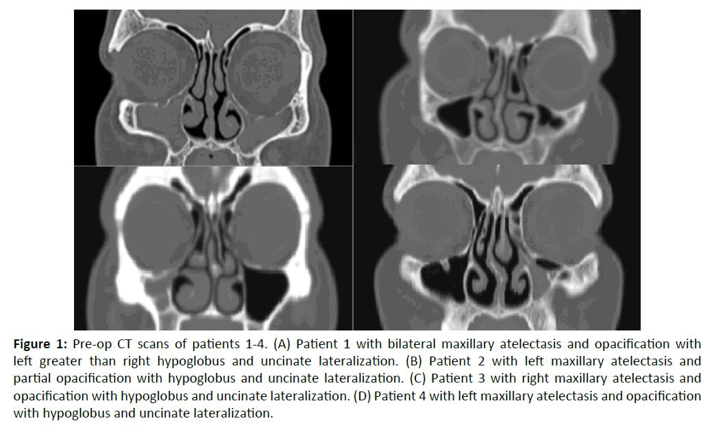 otolaryngology-online-journal-Pre-op-CT-scans