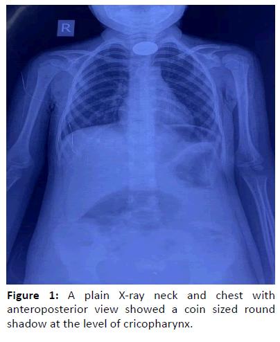 otolaryngology-online-journal-anteroposterior