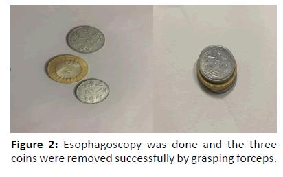 otolaryngology-online-journal-grasping