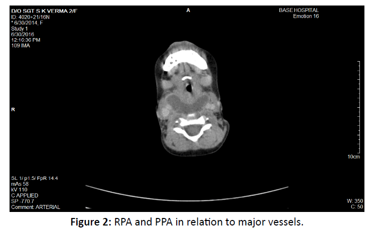 otolaryngology-online-journal-major-vessels