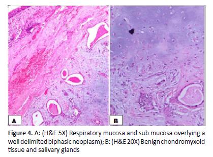 otolaryngology-online-journal-mucosa